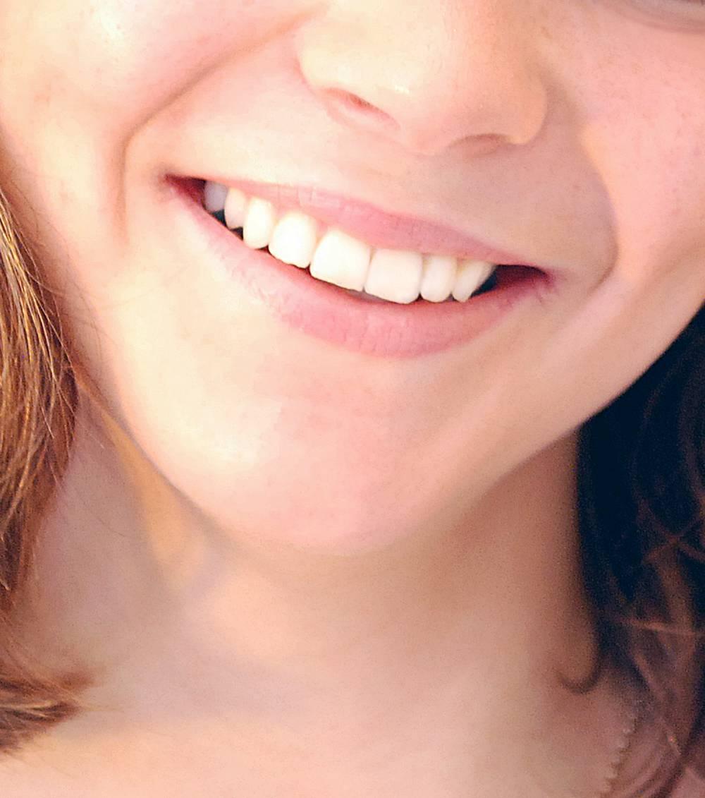 Ästhetische Zahnmedizin ergibt sich aus dem Zusammenspiel von Zähnen, Zahnfleisch und Lippen.