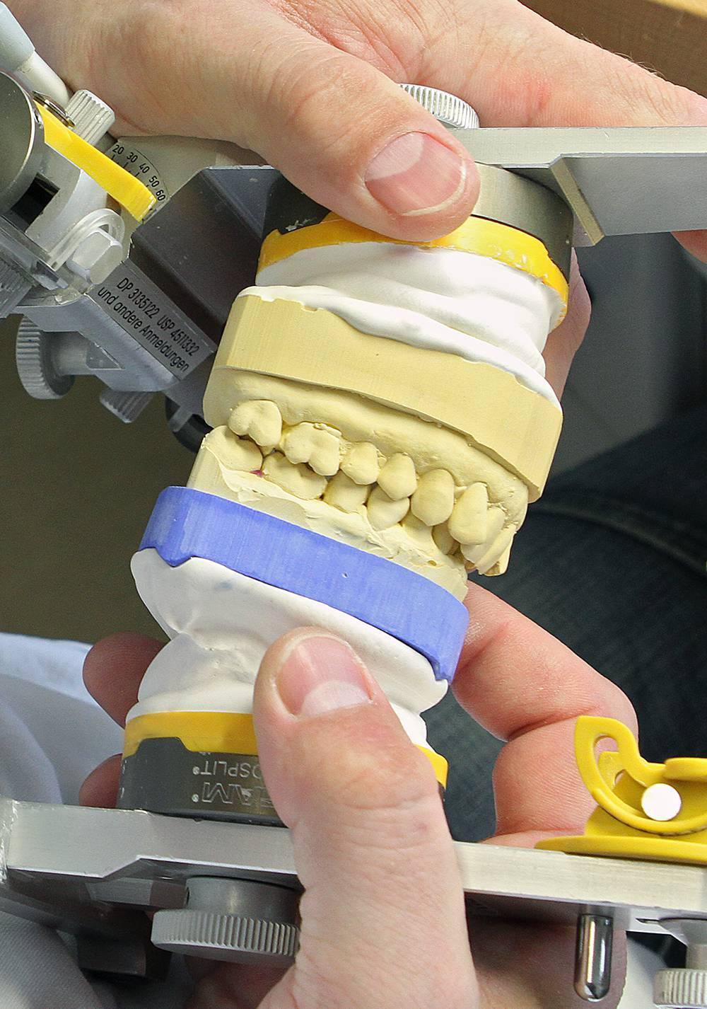 Unser Zahntechniker stellt im praxiseigenen Labor Zahnersatz funktionell und ästhetisch individuell für Sie her.